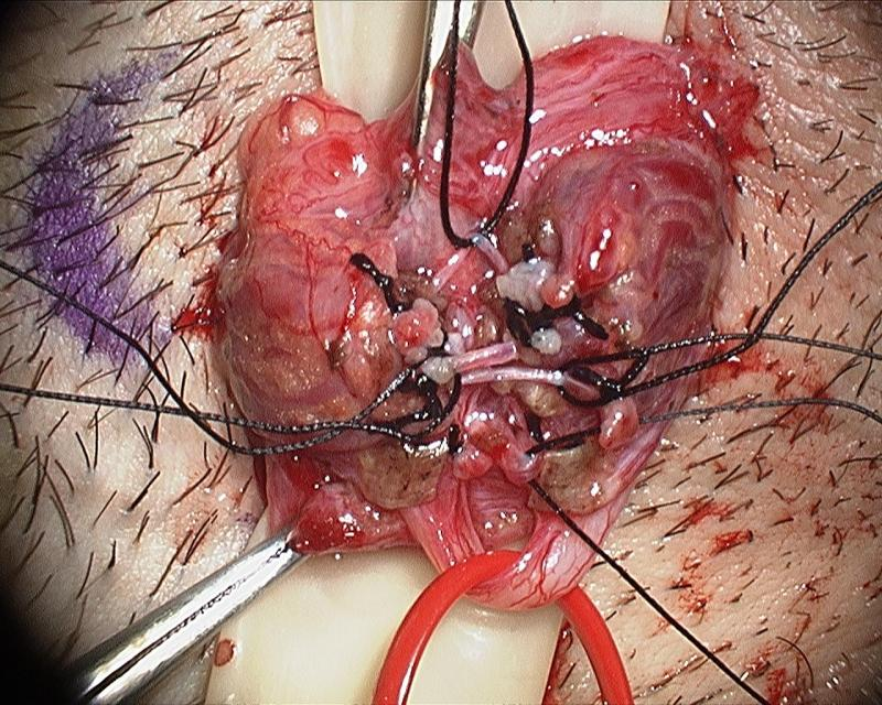 Microsurgical Denervation of the Spermatic Cord by Daniel Williams